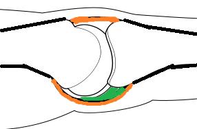 Volar plate anatomy
