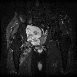 lower extremity soft tissue dockery pdf