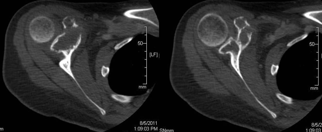 Intraosseous Hemangioma - PORTNotes - OrthopaedicsOne