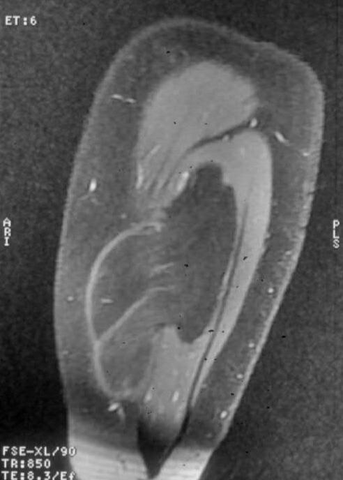Soft Tissue Lipoma - PORTNotes - OrthopaedicsOne