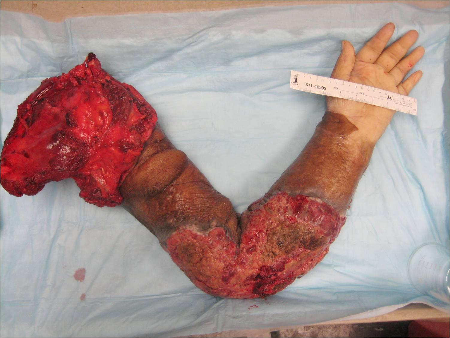 Upper Extremity Amputations Portnotes Orthopaedicsone
