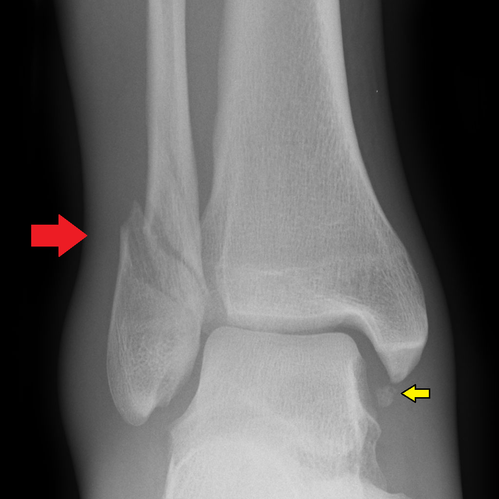 Ankle Fractures (Tibia and Fibula) - Musculoskeletal Medicine for ...