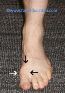 Disorders of the Great Toe - Musculoskeletal Medicine for