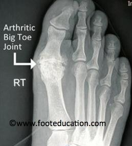 Big Toe Joint Pain New Shoes