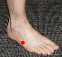 Stress fractures of the foot - Musculoskeletal Medicine for