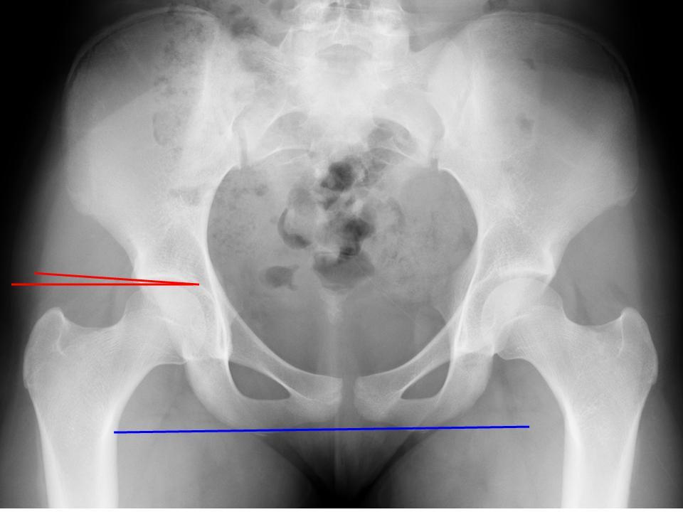 Femoroacetabular impingement - OrthopaedicsOne Articles ...