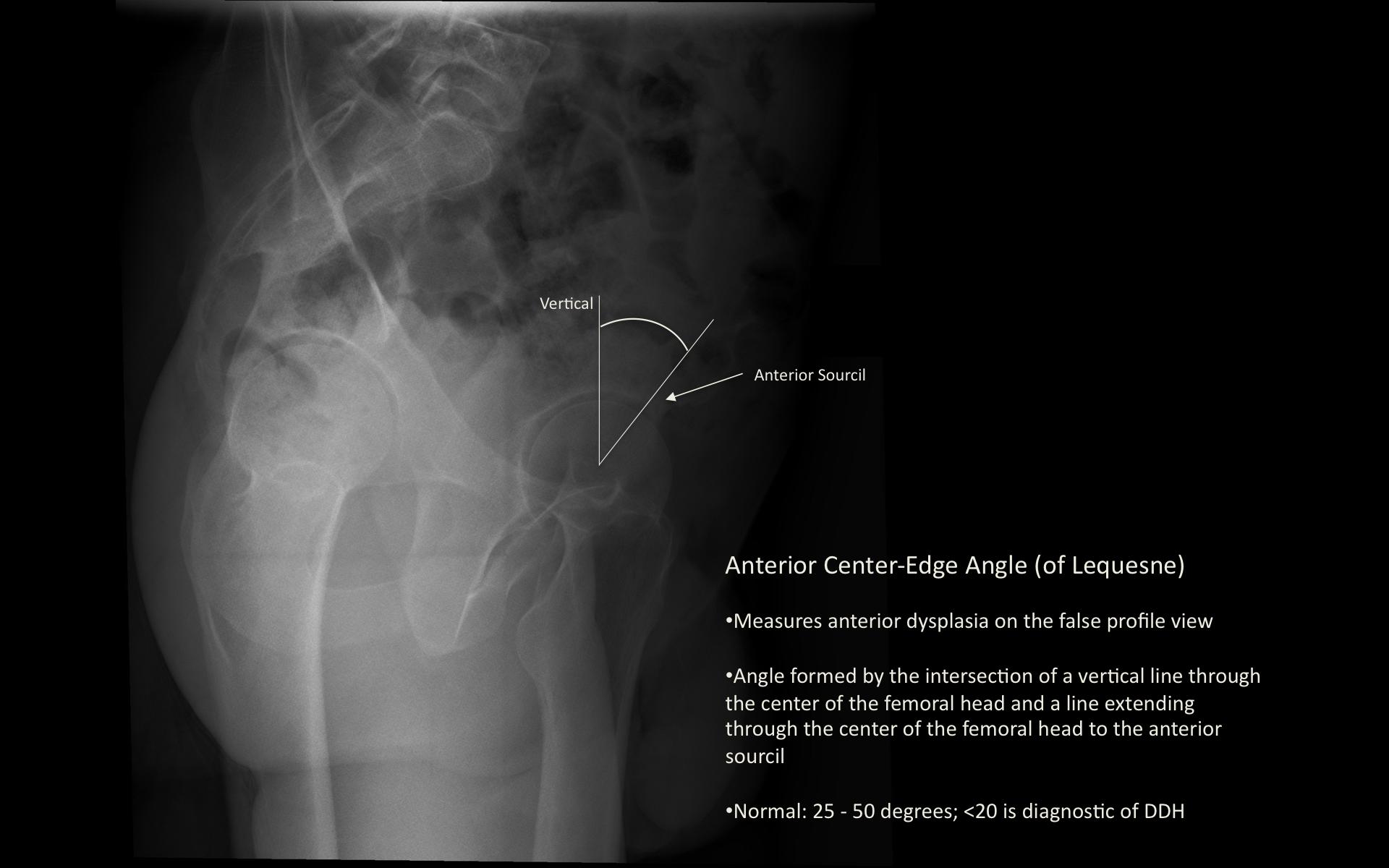 Hip Dysplasia Orthopaedicsone Articles Orthopaedicsone