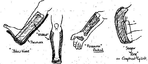 Radial Gutter Splint Plaster Ortho Splinting Traction Pop