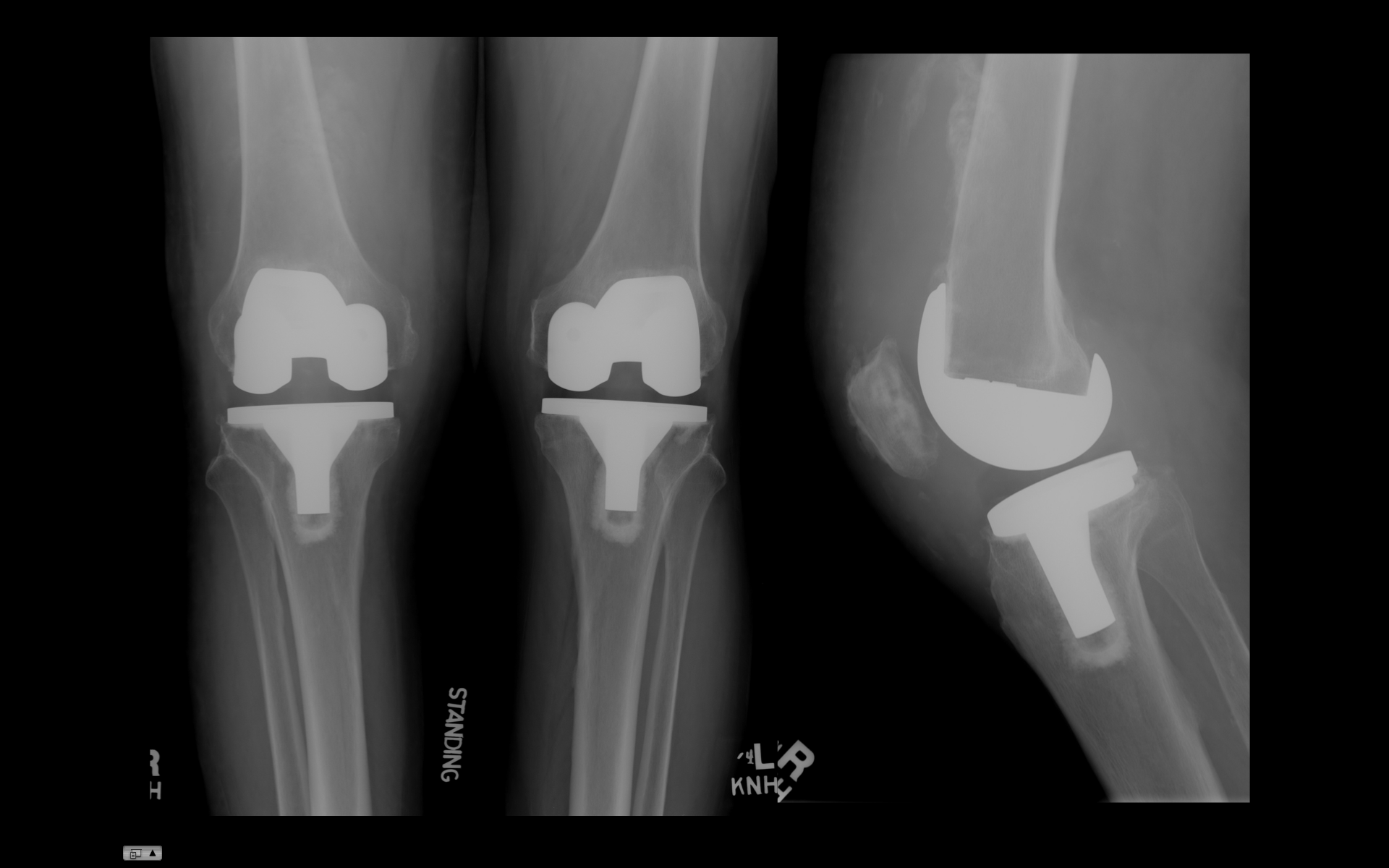 knee arthroplasty After a total knee replacement, patients can get back to their activities fast by following a specialized total knee replacement rehab protocol visit the robotic joint center at the stone clinic.