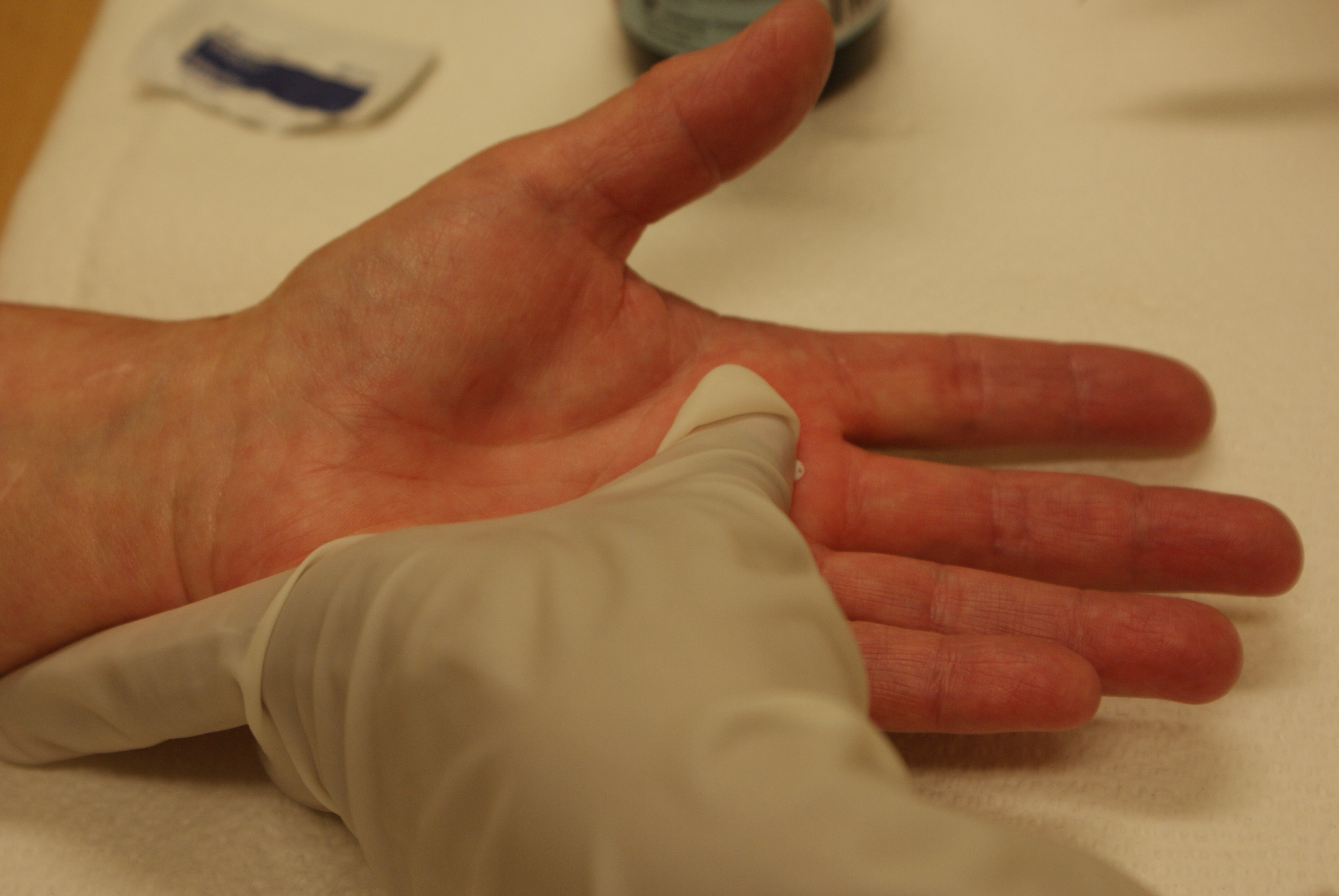 Release affected thumb trigger surg surgeon