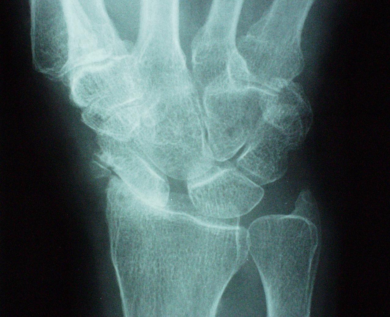 Slac wrist