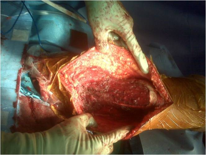 Figure 1g The Tumor Bed Of Posterior Arm Is Demonstrated Here After Wide Resection Radial Nerve Deep To Was Spared And Pt