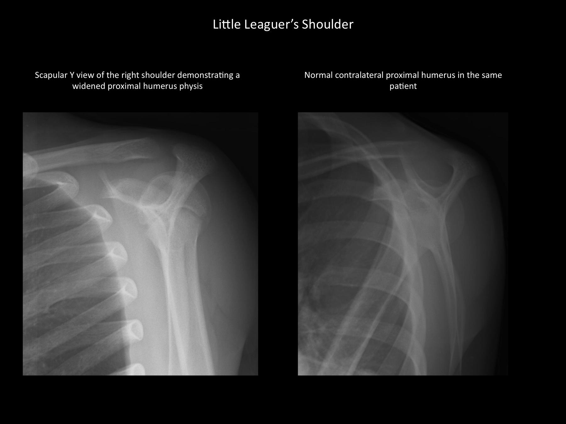 Little Leaguer\'s Shoulder - OrthopaedicsOne Review - OrthopaedicsOne