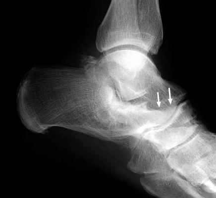 Anteater Nose Orthopaedicsone Articles Orthopaedicsone