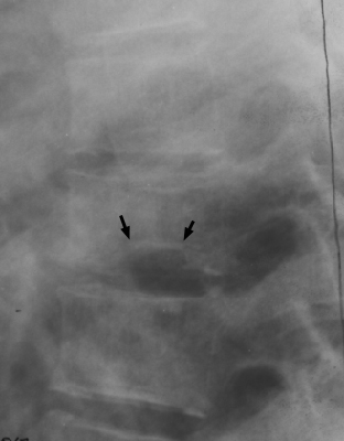 H Shaped Vertebra Orthopaedicsone Articles Orthopaedicsone