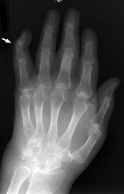 Swan Neck Deformity Sign Orthopaedicsone Articles