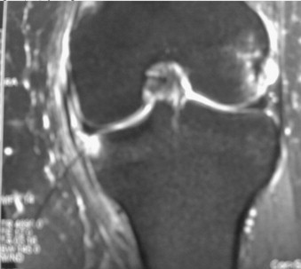 Medial Capsular Sign - OrthopaedicsOne Articles ...
