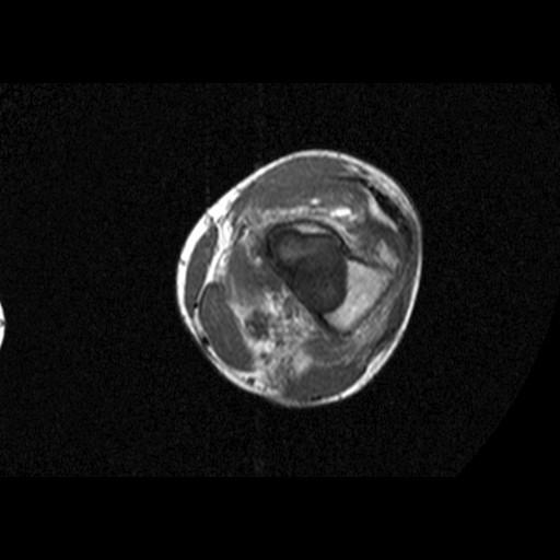 Non Ossifying Fibroma Radiology Orthopaedicsone Images