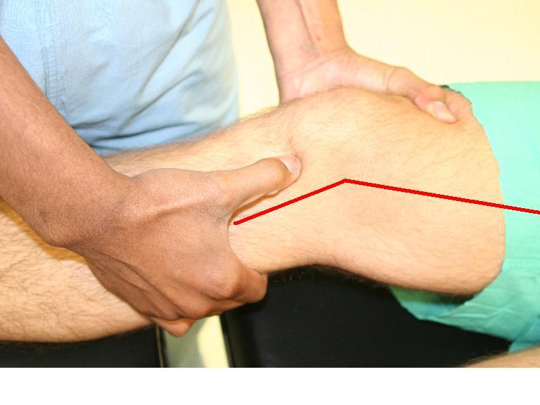 Lachman Test Of The Knee Orthopaedicsone Articles