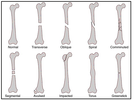 a description of bone fractures Type of fracture description bone repair when a bone breaks 65 fractures: bone repair by rice university is licensed under a creative commons attribution.