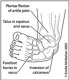the characteristics of clubfoot a congenital foot deformity Clubfoot, also called talipes equinovarus, is a deformity in which an infant is born with one or both feet in an unusual position, usually inward or sideways.
