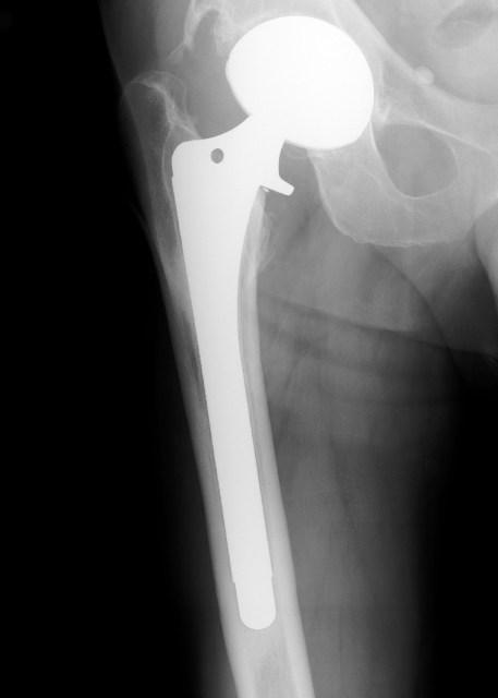 Zimmer Cementless Versys - OrthopaedicsOne Device