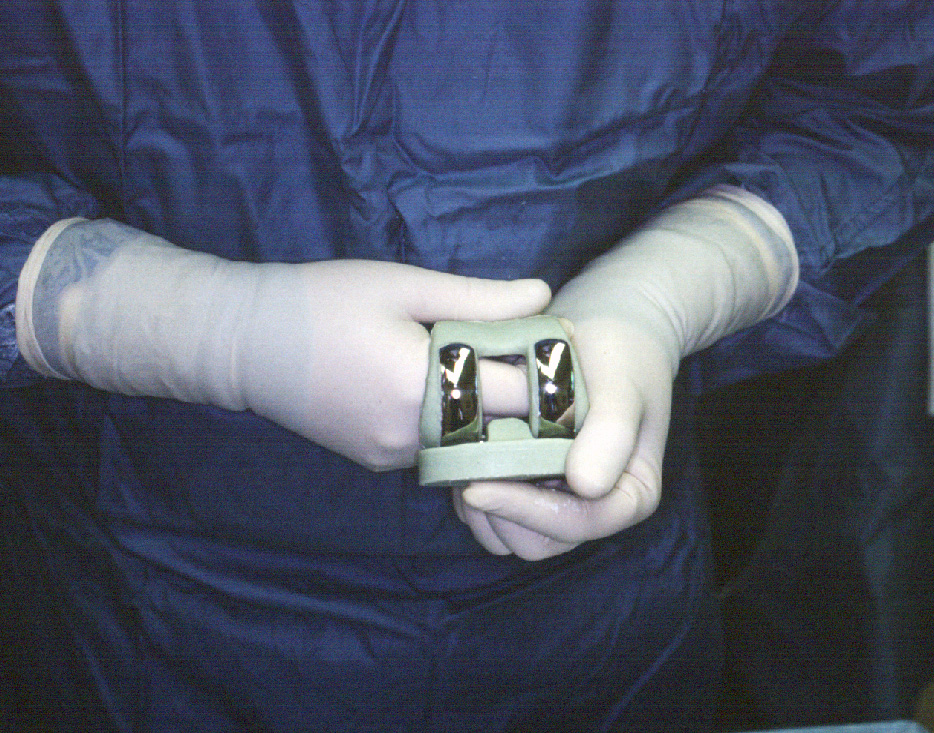 Infected Total Knee Replacement Orthopaedicsone Articles
