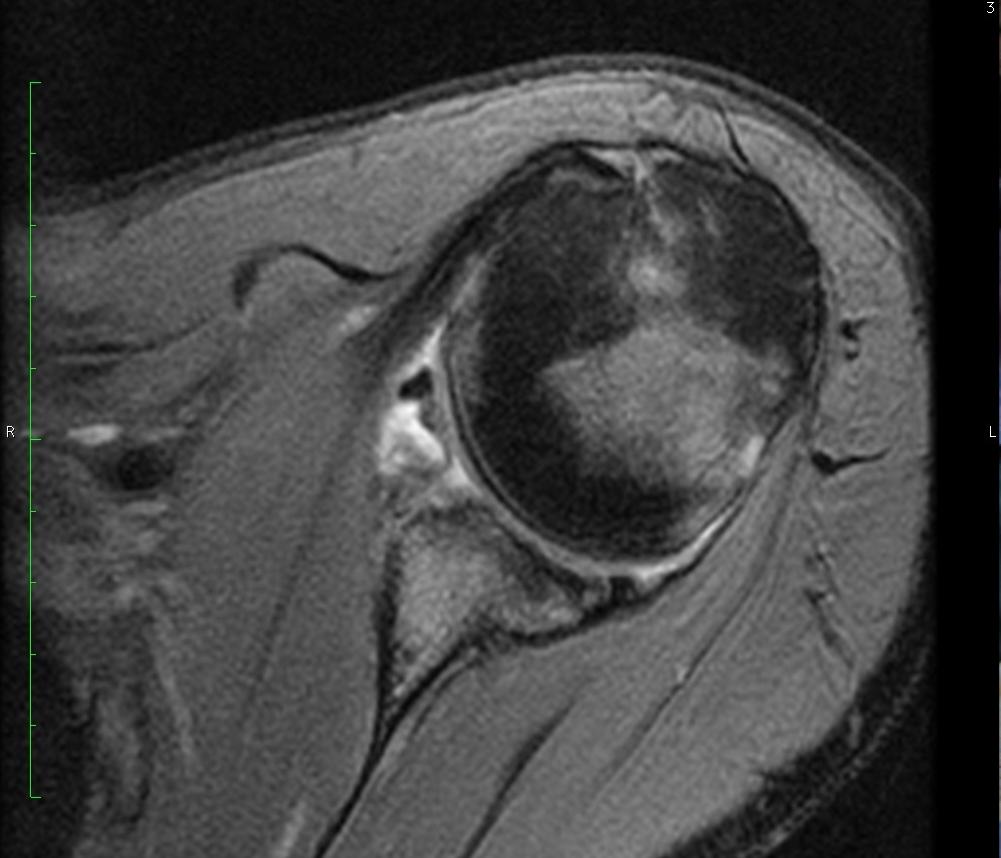 Bony Bankart Lesion - OrthopaedicsOne Images - OrthopaedicsOne