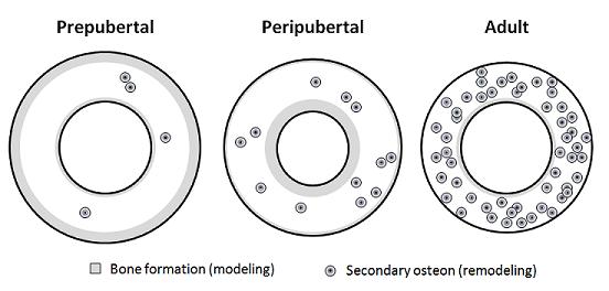 osteogenesis and exercise