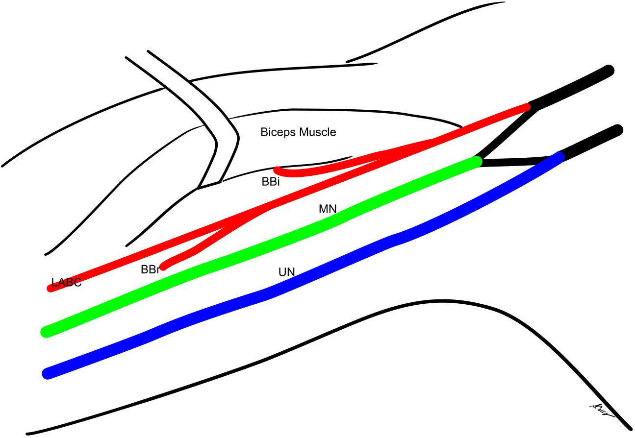 how to draw brachial plexus easily
