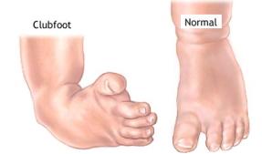 What is Club foot - OrthopaedicsOne Clerkship - OrthopaedicsOne