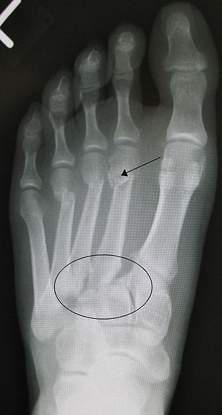 Metatarsal fractures - Musculoskeletal Medicine for Medical