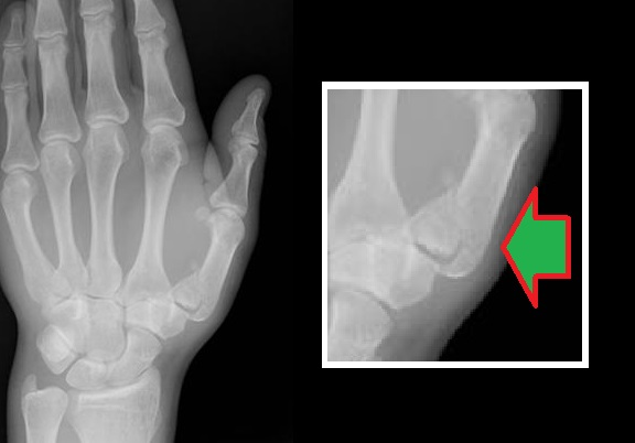 What is a nondisplaced fracture?