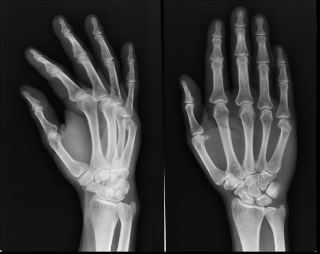 treating rheumatoid arthritis with steroids