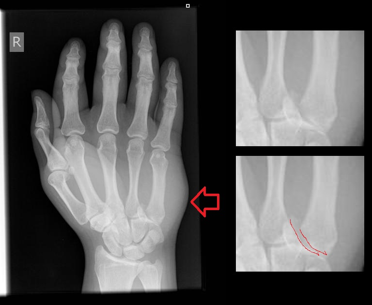 X Ray Broken Hand Figure Fracture of the base
