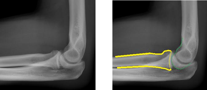 left elbow x ray - photo #25