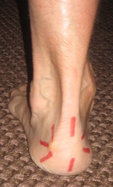 Pain Above Heel Sliding On Shoes