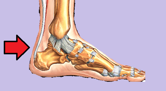 Achilles tendon disorders - Musculoskeletal Medicine for Medical ...