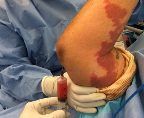 how to get rid of elbow bursitis