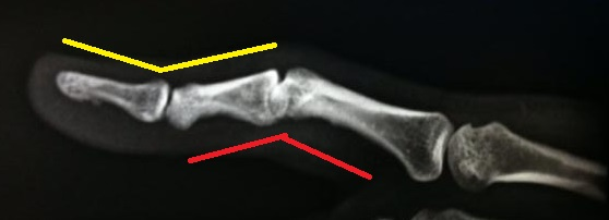 Finger Injury From Dog Collar