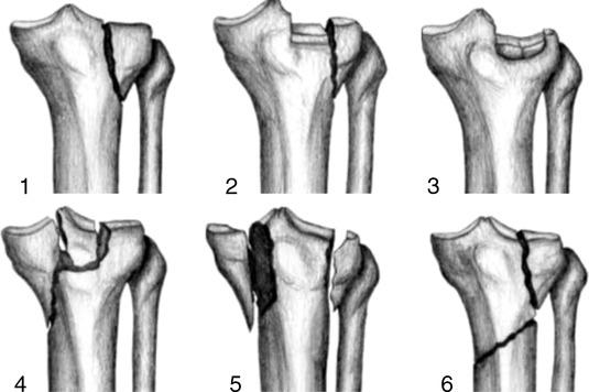 Fractures of the tibial plateau schatzker classification - Tibial plafond fracture classification ...