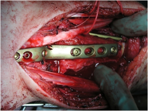 giant cell tumor portnotes orthopaedicsone