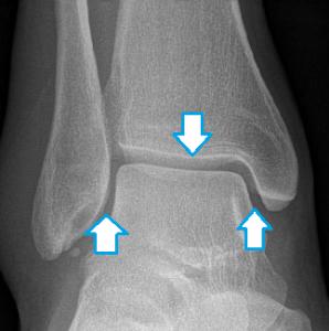 Ankle sprains - Musculoskeletal Medicine for Medical ...