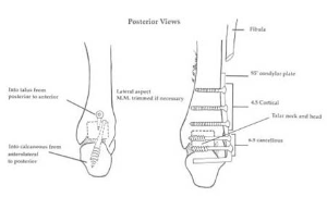 Image Result For Modification For