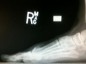 Moberg Osteotomy - Dorsiflexion Osteotomy of Proximal Phalanx