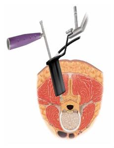 Transforaminal And Posterior Lumbar Interbody Fusion Tlif
