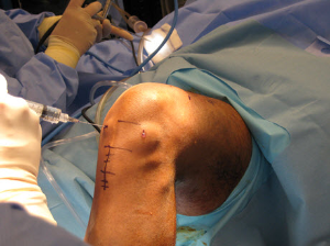 Revision Anterior Cruciate Ligament Acl Reconstruction