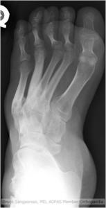 Cavovarus Foot Orthopaedicsone Articles Orthopaedicsone