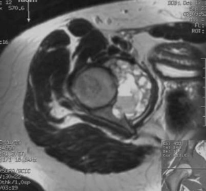 Aneurysmal+bone+cyst+Acetabulum+Radiology20101103_0128.jpg?version=1&modificationDate=1288823137000