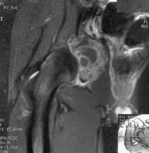 Aneurysmal+bone+cyst+Acetabulum+Radiology20101103_0129.jpg?version=1&modificationDate=1288823137000